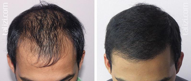 Маски при облысении волос в домашних условиях